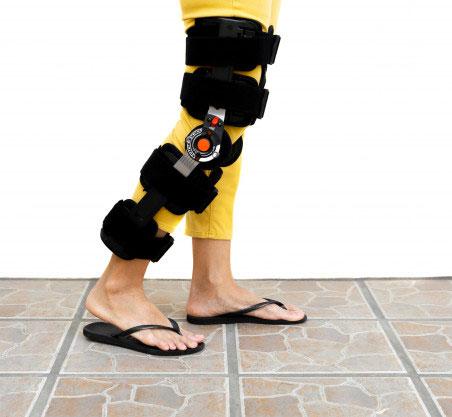 ортез вместо гипса при переломе